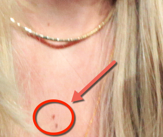Closeup of Jennifer Lawrence's red chest moles